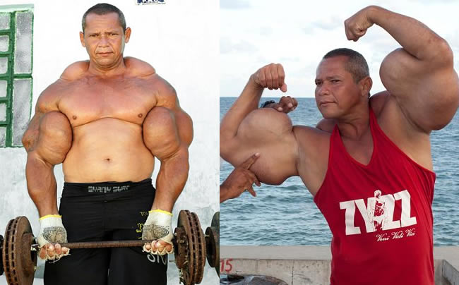 Bodybuilder In Brazil Injects Oil Into Muscles