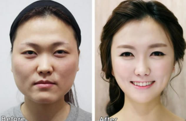 How South Korean Plastic Surgeons Cause Passport Issues