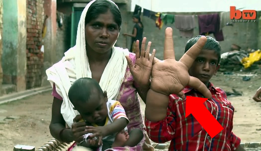 Indian Boy Suffers From Mysterious Disorder Giving Him Giant Hands